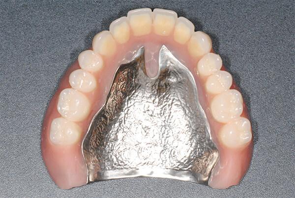 各種金属床義歯