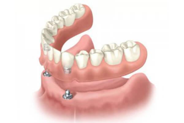 インプラント固定式入れ歯(義歯)
