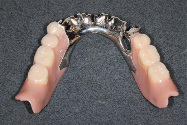 金属床部分義歯