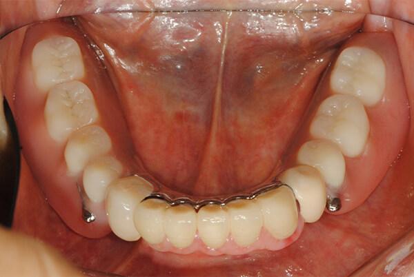 特殊金属床部分義歯+インプラント