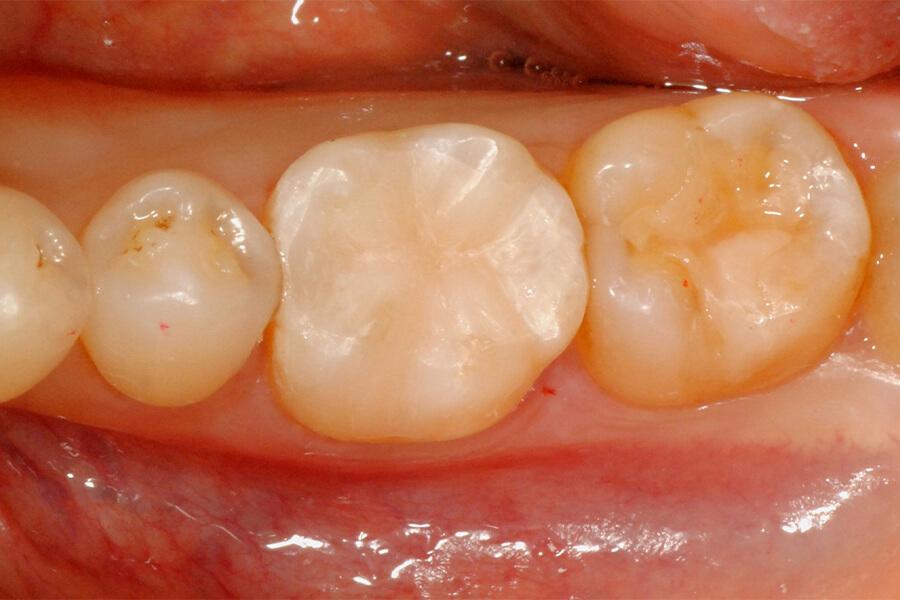 臼歯部インレーの再修復