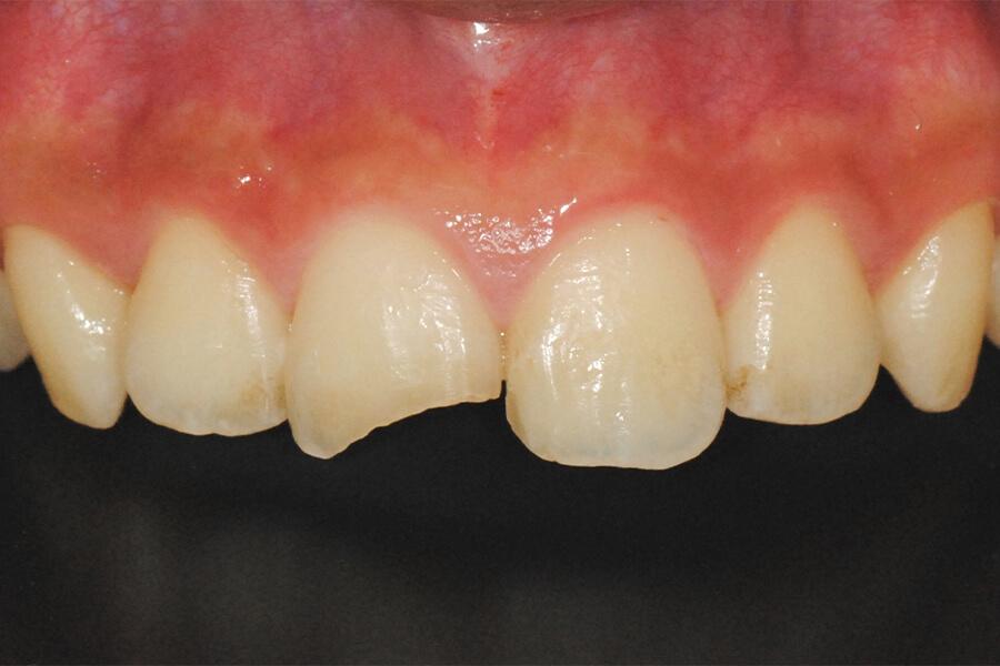 外傷による歯牙破折の修復