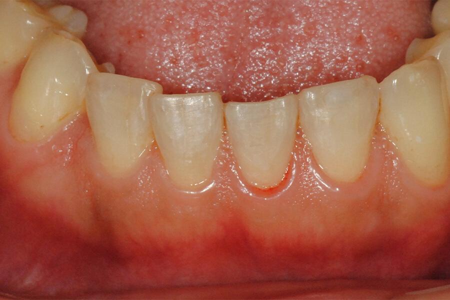 下顎前歯の咬耗の修復
