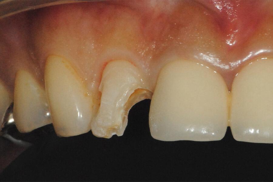 上顎前歯ダイレクトベニヤ