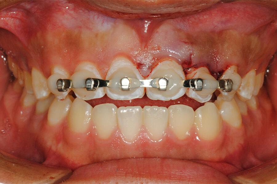 外傷歯の失活変色に対しての歯内法ホワイトニング+KPCR+ファイバーポスト補強