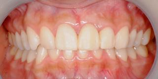 最終的な仮歯