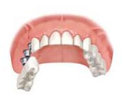 Step 3 仮歯の装着