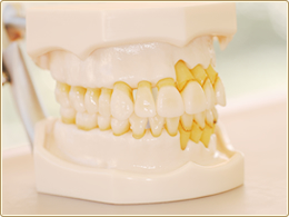 歯周病模型 健常側