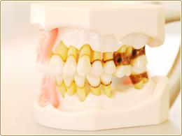 歯肉縁下歯石の模型歯肉縁下歯石の模型