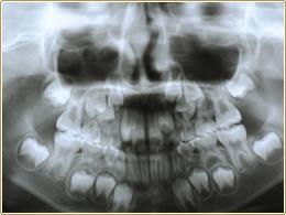 骨の中の永久歯の数や位置は正常かな?