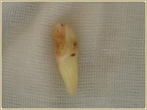 外傷による歯の脱臼、歯槽骨骨折