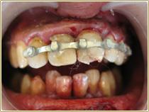 口腔内裂傷や口唇裂傷などの外傷や出血