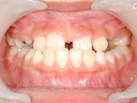 前歯が反対