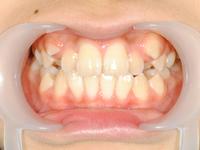 2番目の歯が反対
