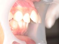 前歯の距離が大きい