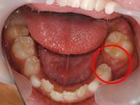 乳歯の奥歯が早く抜けてしまった